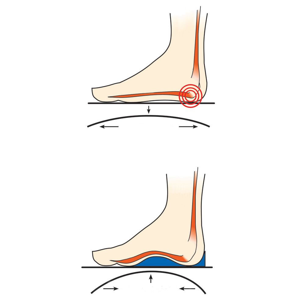 The Gentleman's Plantar Fasciitis Slide2