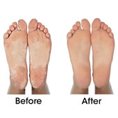 The Callus Removing Foot Treatment.