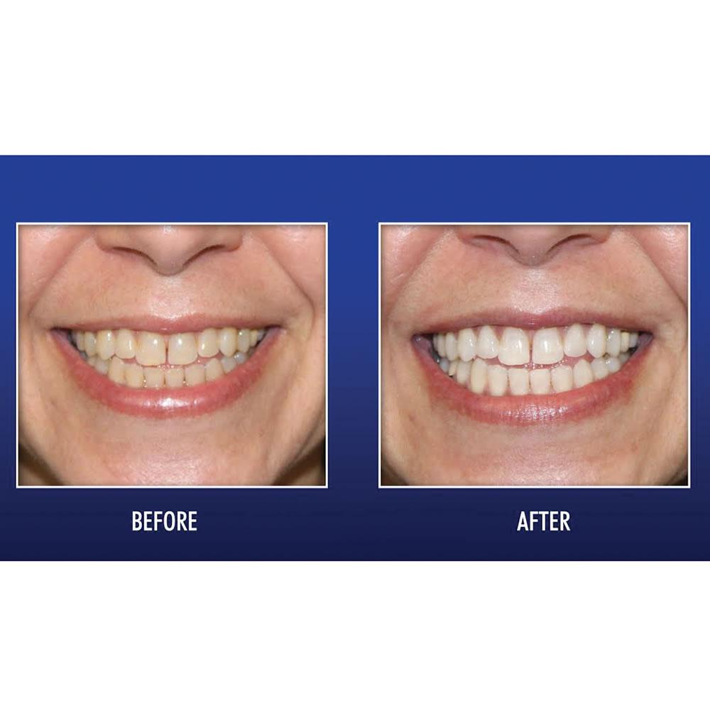 The Enamel Preserving Uv Teeth Whitener Hammacher Schlemmer